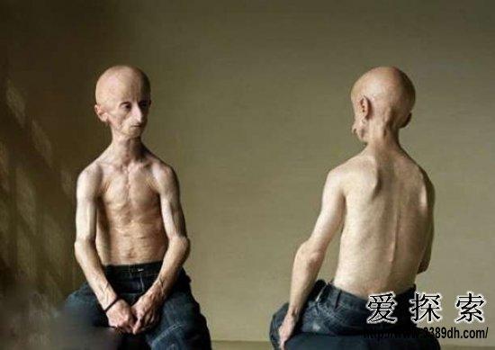 全球恐怖人体变异:3个乳房的美女模特